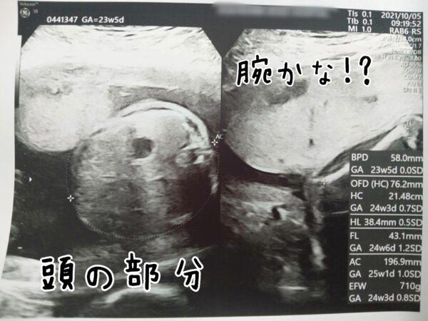 妊婦健診 23週 6ヶ月